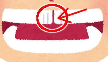 歯で性格・運勢占い●前歯に隙間や黒い線がある場合