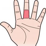 第三関節 中指のほくろ