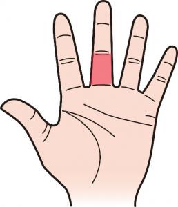 第三関節|中指のほくろ