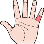 第三関節 小指のほくろ占い