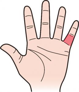 第三関節|小指のほくろ占い