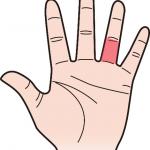 第三関節 薬指のほくろ占い