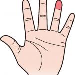 第一関節 薬指のほくろ