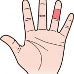 第二関節 薬指のほくろ占い