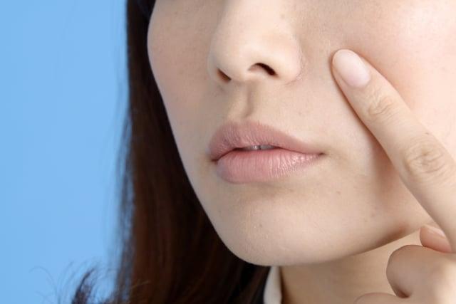 黄ニキビが鼻の下など鼻の近くにできやすい原因