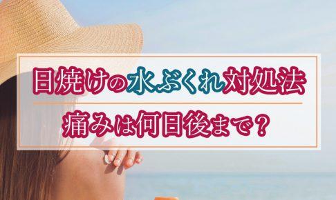 日焼けで水ぶくれや痛みは何日後に治る?いつまでに病院に行くべき?